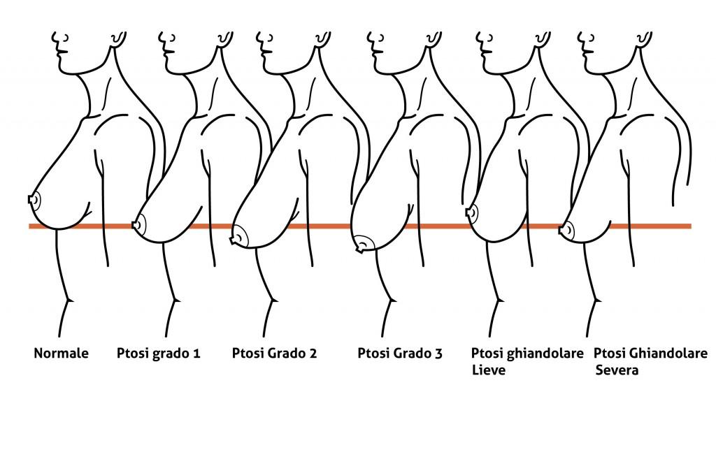 Classificazione della Ptosi Mammaria