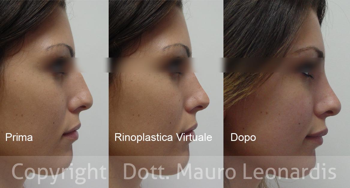 rinoplastica virtuale
